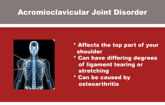 acromioclavicular joint disorder