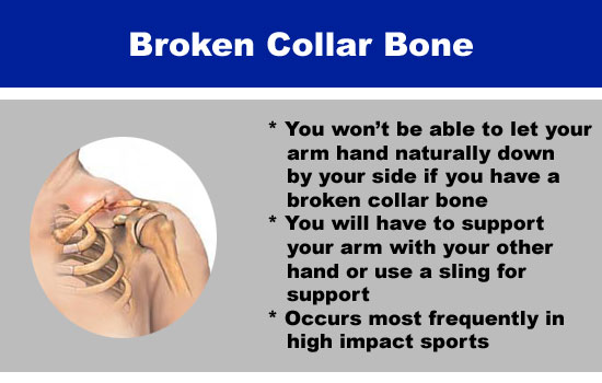 broken collar bone