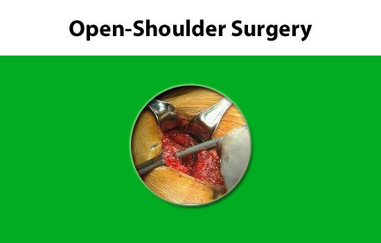 open shoulder surgery