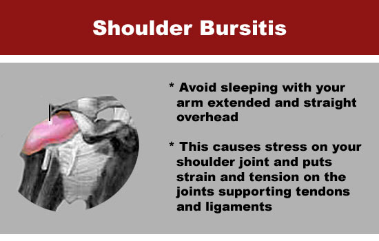shoulder bursitis at night