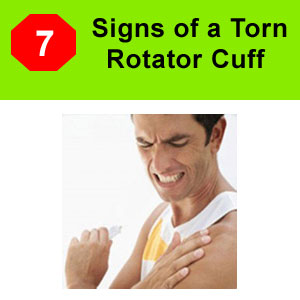signs of torn rotator cuff